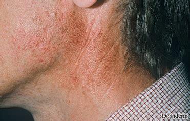 Vascular Conditions   ADVATx
