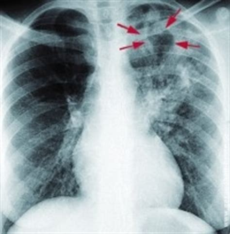 tuberkulose neckar apotheke gemmrigheim