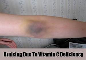 5 Various Symptoms Of Vitamin C Deficiency | Search Home ...