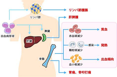 急性 骨髄 性 白血病 原因 ストレス