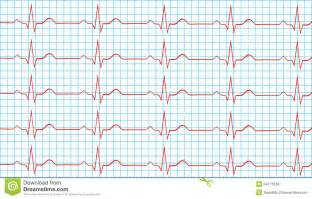 Normal Sinus Rhythm Heart