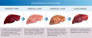 What Causes Most Liver Diseases  Alcohol