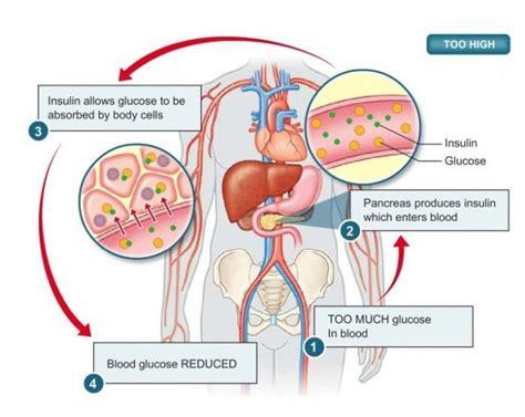 diabete  infarto  fattori  rischio modificabili