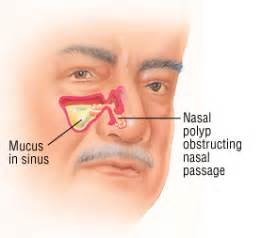 Do I need surgery to remove a nasal polyp? - Ask Doctor K