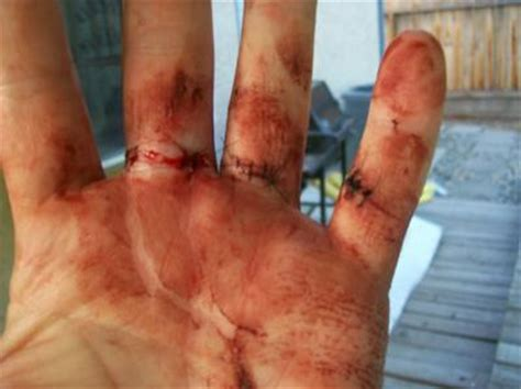 Slip and Fall Accident Injuries Severely Cut Finger, Torn