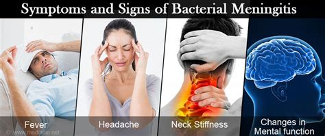 Bacterial Meningitis  Causes, Symptoms, Diagnosis. Implementation Signs. Red Flag Signs. Charcot Joint Signs. Oven Signs Of Stroke. Environment Signs Of Stroke. Snap Chat Signs. Jan Signs. Flower Signs Of Stroke
