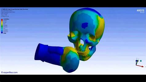 ANSYS WB FINITE ELEMENT ANALYSIS - Boxing punch of a ...