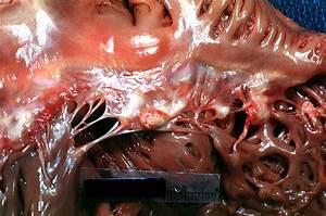 Endocarditis Pathology
