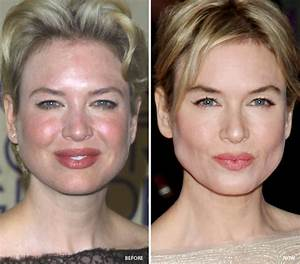 Celebrities Who Fixed Bad Skin Adult Acne Pimples