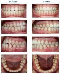 Invisalign Buck Teeth Before and After