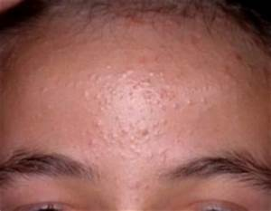 Pimples on Forehead - Causes - Easy Treatments and Home ...