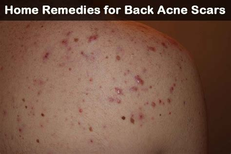 21 DIY Home Remedies for Back Acne Scars