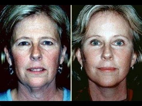 The facial microcurrent commitment - YouTube