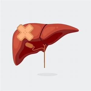 Liver Cirrhosis Merck Manual
