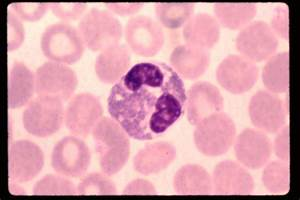 Eosinophil Histology - Bing images