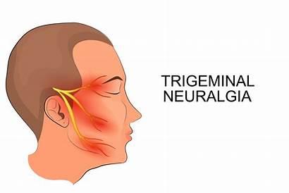 Trigeminal Neuralgia Care Nerve Neck Nerves Cranial
