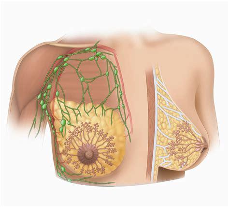 Mastitis And Breast Abscess Medicalopedia
