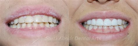 When can i start drinking coffee after wisdom tooth extraction? Teeth Whitening in Miami - At Home Vs Dental Procedures