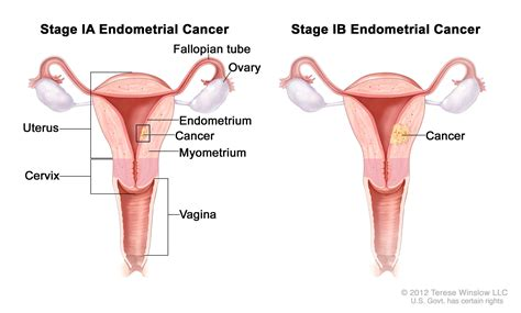 Shedding Of Uterine Lining by Endometrial Cancer Treatment Pdq 174 Patient Version