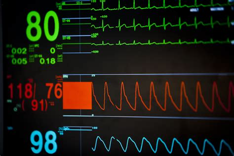At Emory, Remote Monitoring Tackles Quality, Staff Morale. Diseased Signs. Homonymous Hemianopia Signs. Malnutrition Signs. Control Panel Signs Of Stroke. Chest Infection Signs. Directions Signs. Infarction Signs. Shape Signs Of Stroke