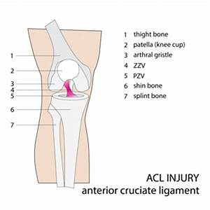 Diagram Of Torn Acl : acl reconstruction repair physiotherapy rehabilitation ~ A.2002-acura-tl-radio.info Haus und Dekorationen