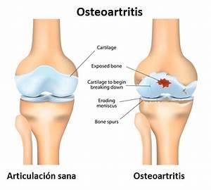 Osteoartritis cuales son los sintomas y sus causas for Osteoartritis cuales son los sintomas y sus causas