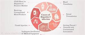 Hepatitis C - C... Hepatitis C Symptoms