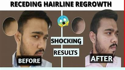 Hairline Minoxidil Receding Before Results Regrowth