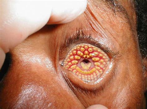 weirdest  rarest diseases   mankind
