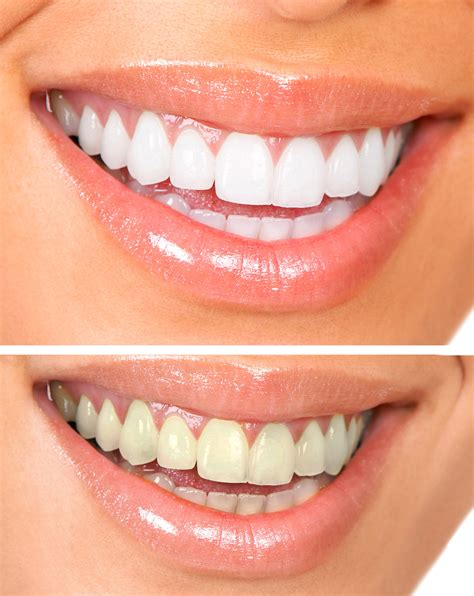 Best Tooth Whitening by Professional Teeth Whitening Tribeca New York Tribeca Smiles