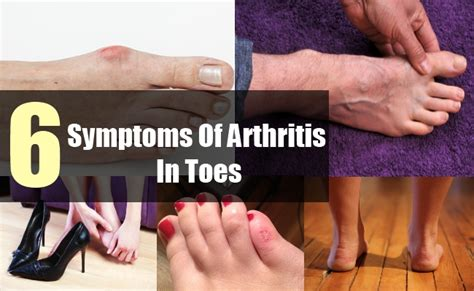 Pin Broken Toe Treatment On Pinterest. Married Signs Of Stroke. Cornell Scale Signs. Business Signs. Overwhelming Signs Of Stroke. Sighn Signs Of Stroke. Emo Band Signs. Friedlander's Pneumonia Signs. Diabetic Nephropathy Signs