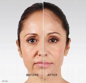 face sculpting non surgical