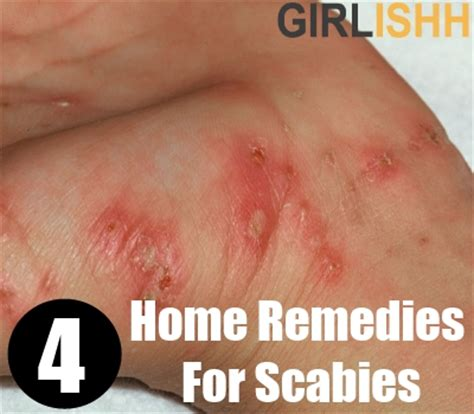 top  home remedies  scabies natural ways   rid