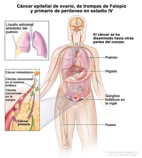 tratamiento de los tumores de celulas germinativas del