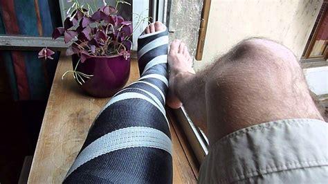 Long Leg Cast Black And White 1 Youtube