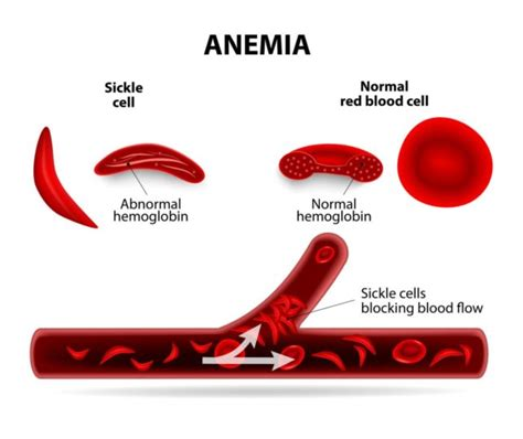 Sickle Cell Disease  Familydoctororg. Ms Project Planning Software. How Do U Say Brother In Spanish. Methods Of Hiv Transmission C3 C4 Disc Bulge. Business Consulting Firms Denver. Masters In Mathematics Education. Customer Christmas Cards Dallas Acting School. Best Alarm Systems For Home Send Txt Message. Ulcerative Colitis Treatment Diet
