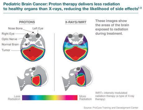 Proton Therapy Chicago by Proton Therapy For Pediatric Tumors Northwestern