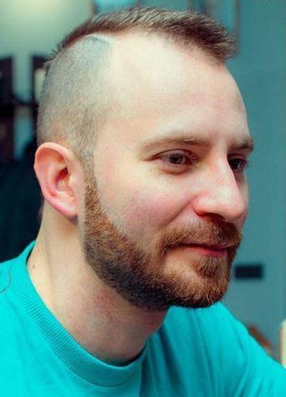 15 Best Hairstyles for Balding Men