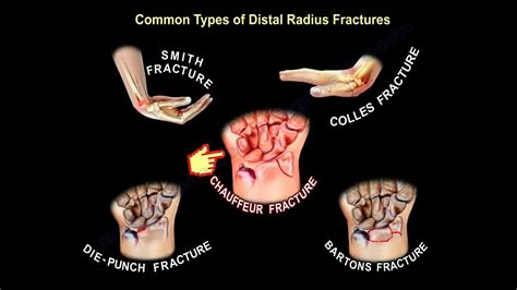 Common Types Of Distal Radius Fractures