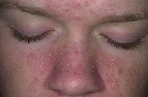 seborrheic dermatitis - The Seborrheic Dermatitis Blog Dermatitis