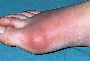 Tis U2019 The Season When Gout Will Flare - Carolina Peacemaker