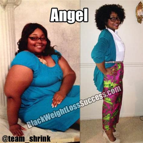 angel lost  pounds  weight loss surgery black
