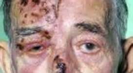 Eye Complications of Acquired Immune Deficiency Syndrome (AIDS) Part 1 ...  AIDS and Infections Acquired Immune Deficiency Syndrome
