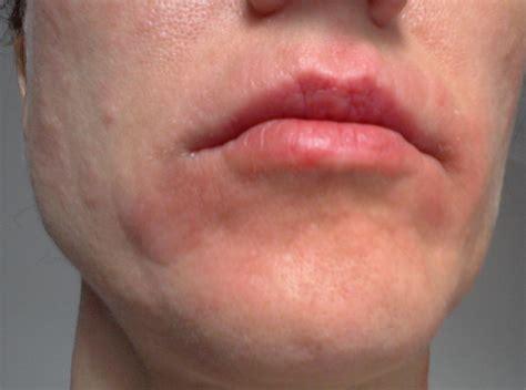 Face Eczema Face Eczema Weebly