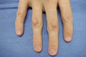 Целебрекс при болях в суставах