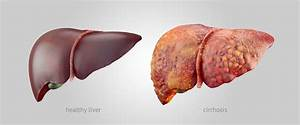 Learn How To Reverse Liver Damage