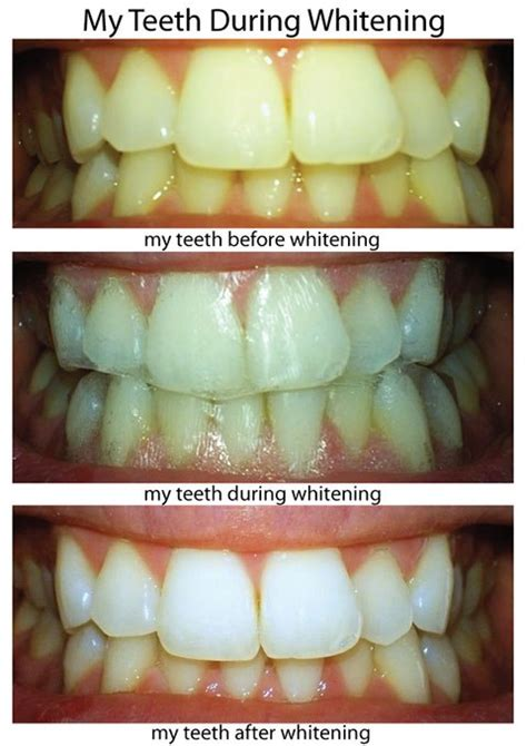 crest whitestrips supreme review crest 3d whitestrips professional effects review