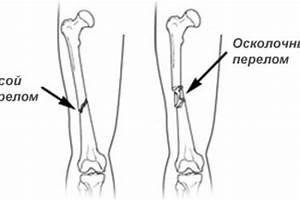 Какая боль при защемлении нерва в тазобедренном суставе