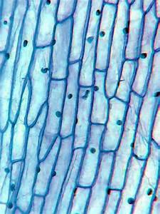 Onion Peel Cell Diagram
