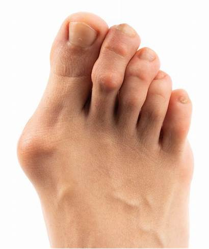 Bunion Causes Bunions Foot Ankle Treatments Types